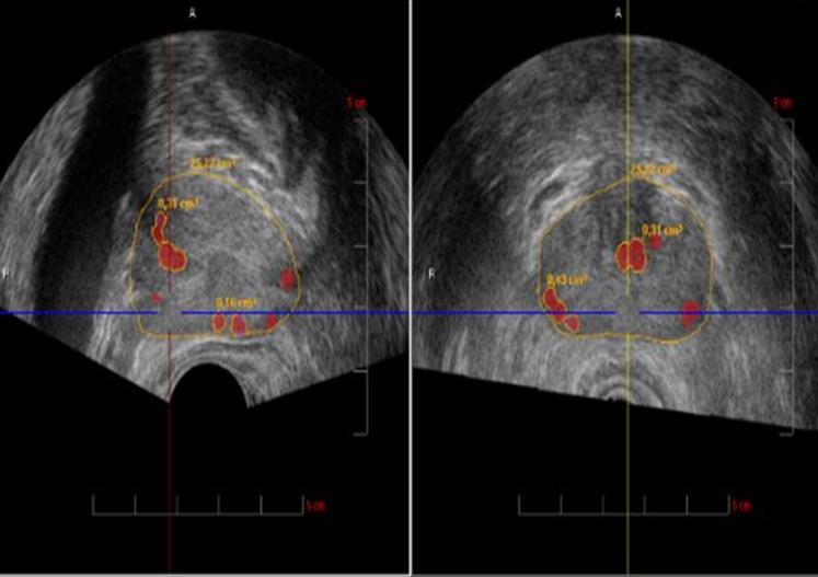 Nuevos avances en terapia focal para el cáncer de próstata temprano