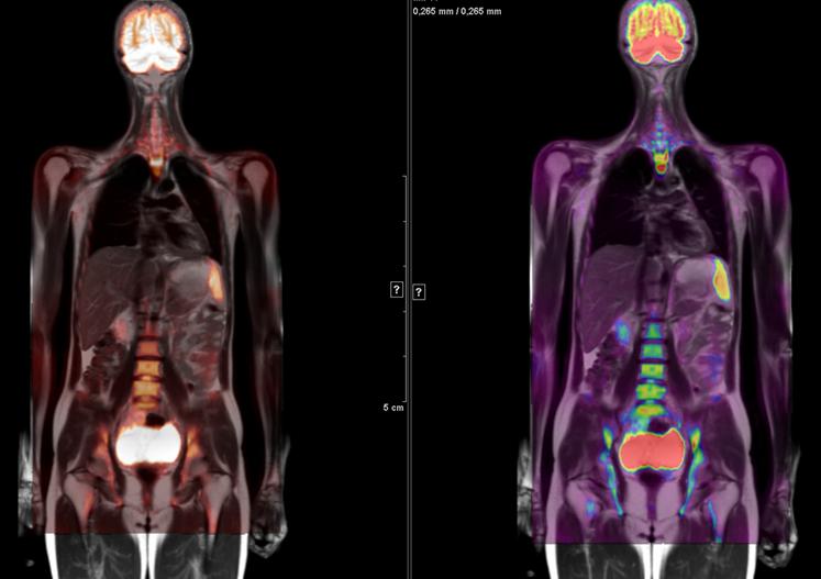 resonancia multiparametrica de prostata cups